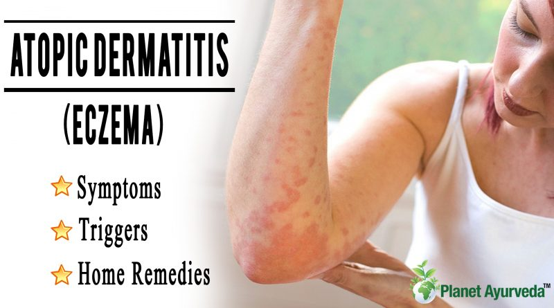 Atopic Dermatitis (Eczema) Symptoms, Triggers, and Home Remedies