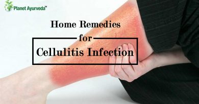Home-Remedies-for-Cellulitis-Infection
