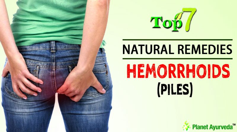 TOP 7 NATURAL REMEDIES FOR HEMORRHOIDS (PILES) THAT WORKS