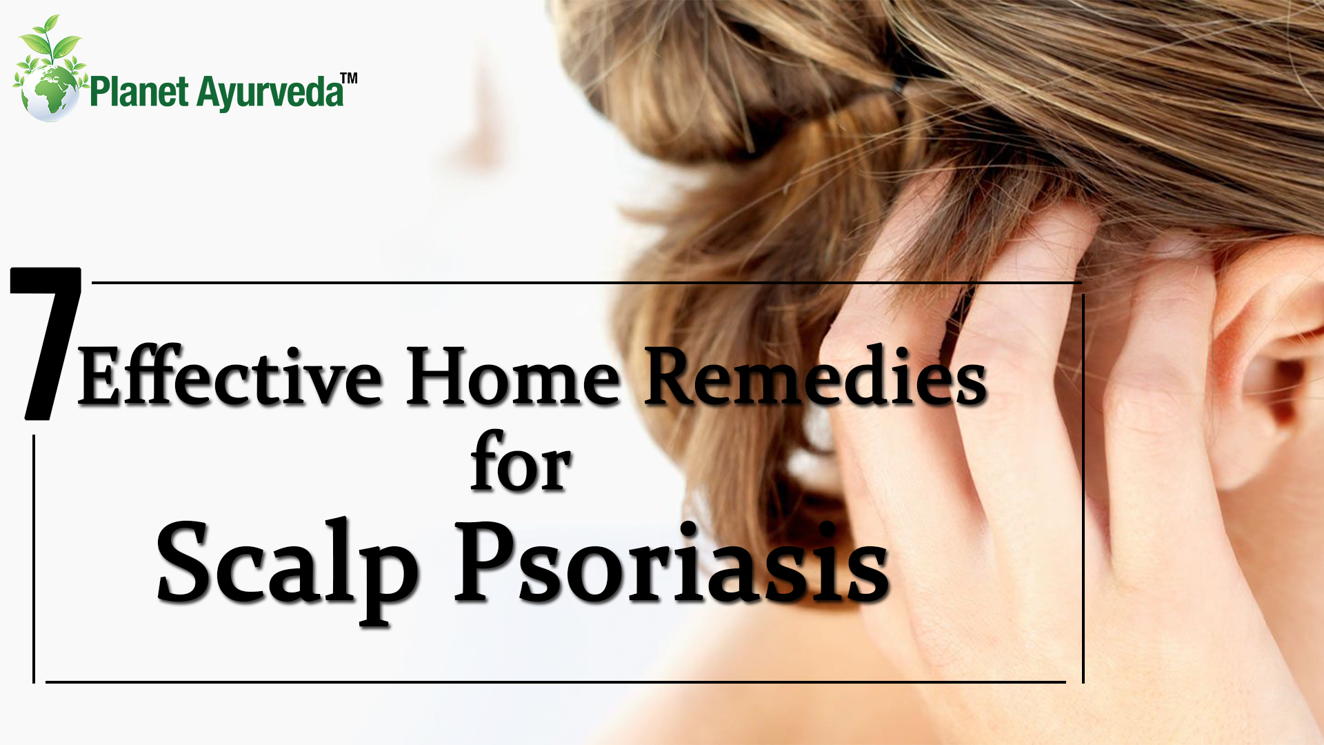 7 Effective Home Remedies for Scalp Psoriasis
