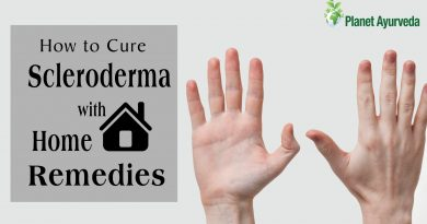 How to Cure Scleroderma with Home Remedies
