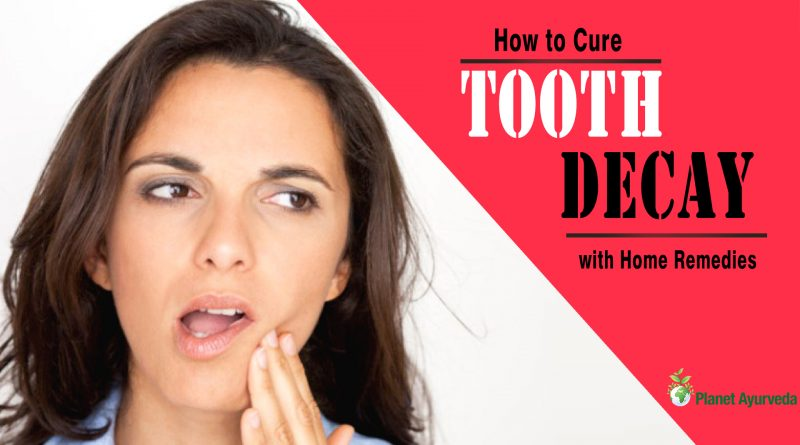 How to Cure Tooth Decay with Home Remedies