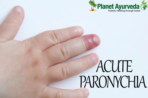 Natural Treatment Of Acute Paronychia