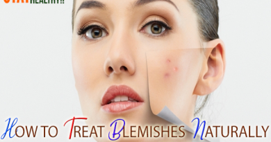 HOW TO TREAT BLEMISHES NATURALLY