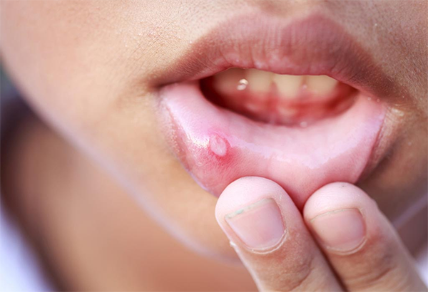 mouth ulcer