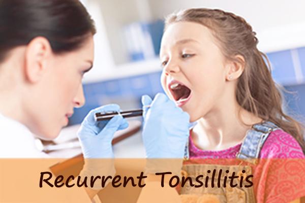 Natural Treatment for Recurrent Tonsillitis