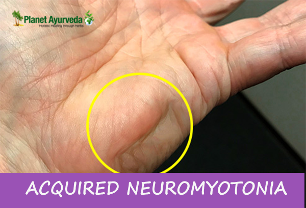 planet ayurveda ACQUIRED NEUROMYOTONIA