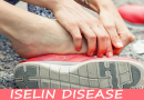 Ayurvedic Treatment for Iselin Disease