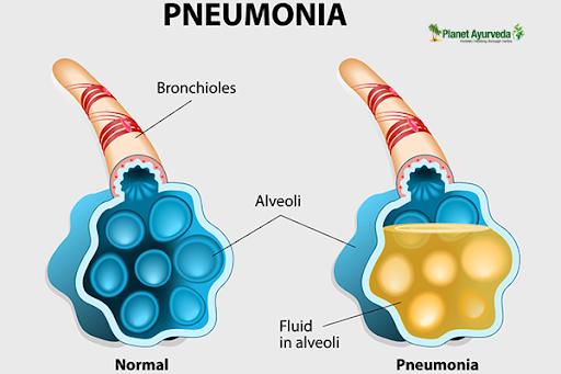 pneumonia pain