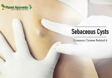What is Sebaceous Cyst and its Treatment with Ayurveda?
