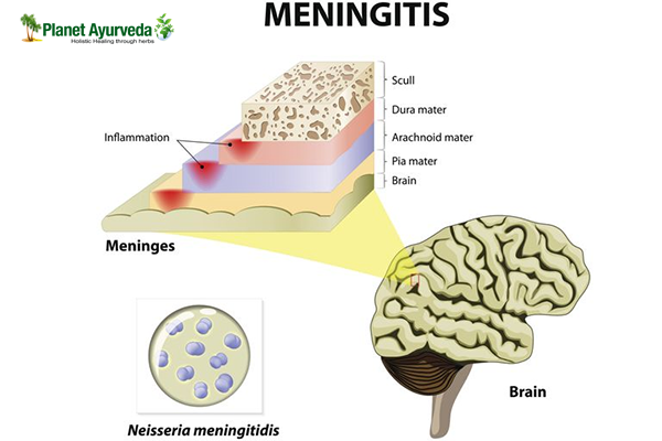 How Meningitis can be Treated Naturally?