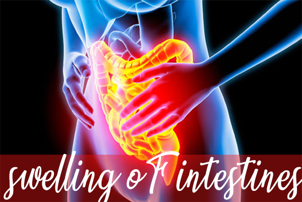 swelling of intestines