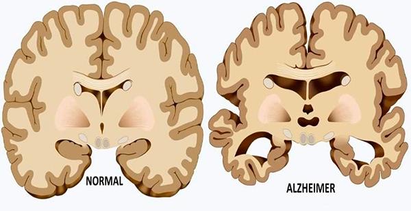 अल्जाइमर का आयुर्वेदिक उपचार