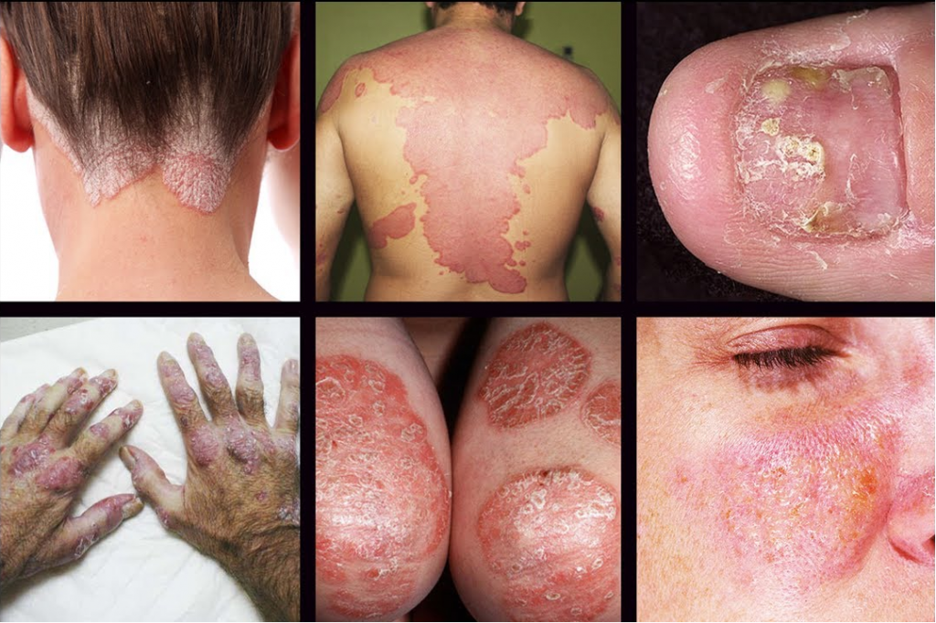 How to treat psoriasis naturally