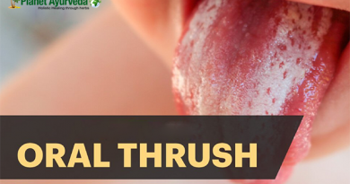 oral thrush.png
