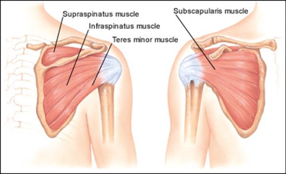 Shoulder Supraspinatus tendonitis