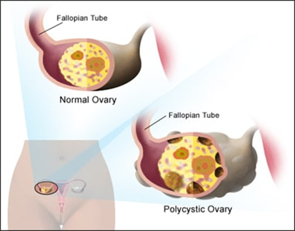PCOD (Polycystic Ovarian Disease)