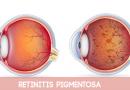 Herbal Remedies to Treat Retinitis Pigmentosa