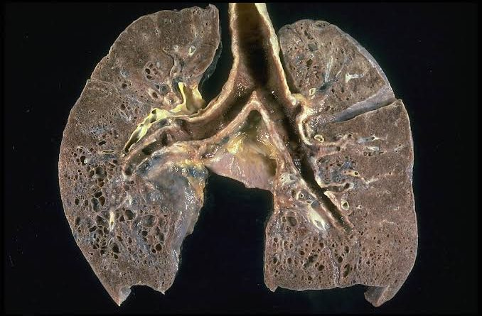 Honeycombing of Lungs