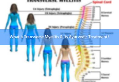 What is Transverse Myelitis & its Ayurvedic Treatment?