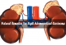 Natural Remedies For Right Adrenocortical Carcinoma ?