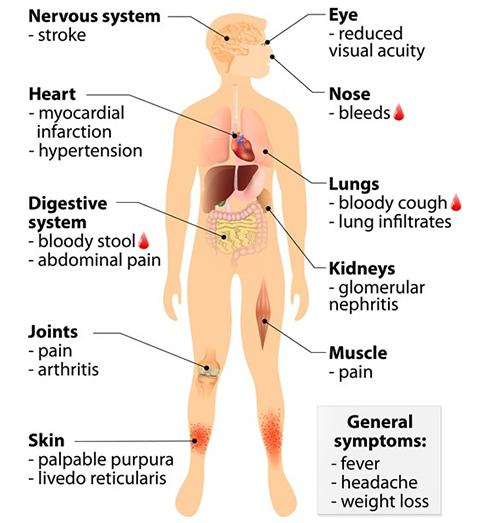 Wegeners Granulomatosis or Vasculitis