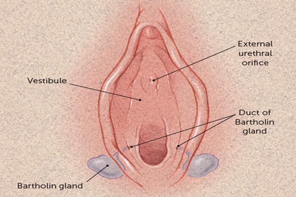 Bartholin's Gland cyst