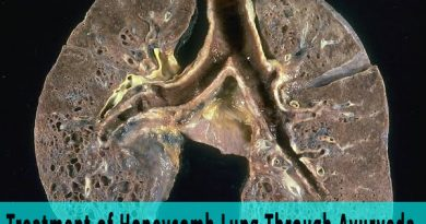 Treatment of Honeycomb Lung Through Ayurveda