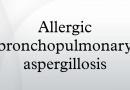 Natural Treatment for Allergic Bronchopulmonary Aspergillosis (ABPA)