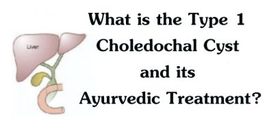 What is the Type 1 Choledochal Cyst and its Ayurvedic Treatment?