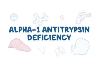 ALPHA 1 – Antitrypsin Deficiency and its Herbal Treatment