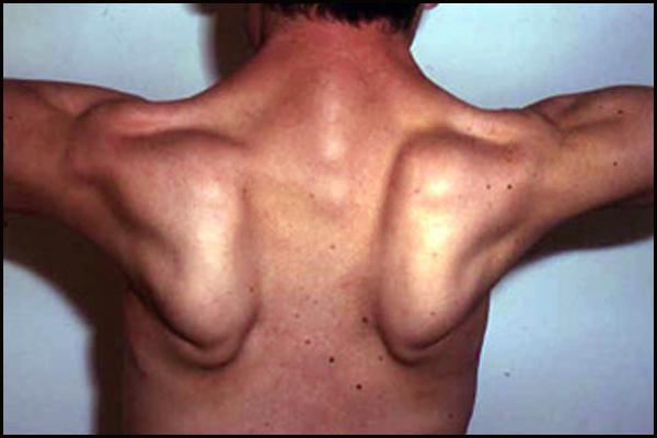 Limb Girdle Muscular Dystrophy