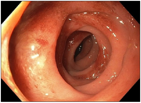 Segmental Colitis