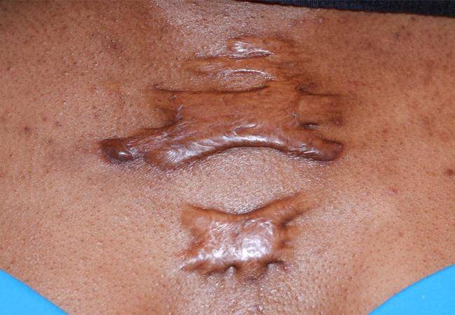 fibrous tissue