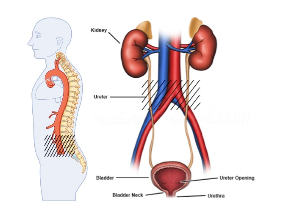 Retroperitoneal Fibrosis
