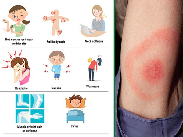 tick borne disease