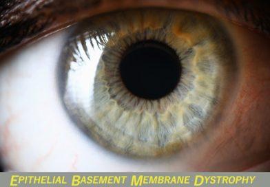 EPITHELIAL BASEMENT MEMBRANE DYSTROPHY