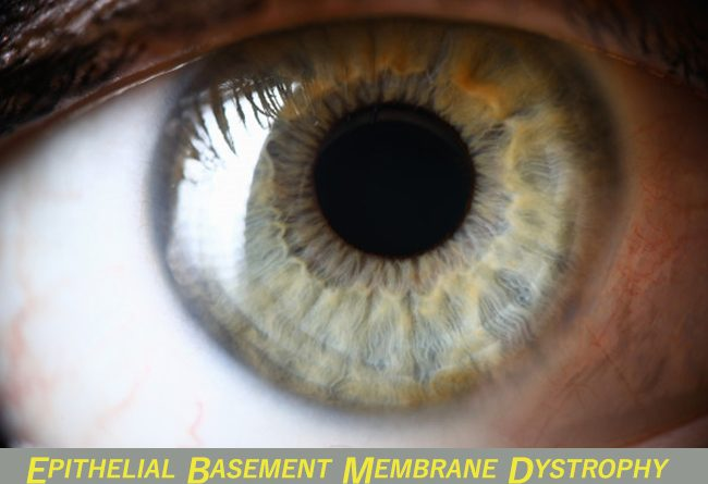 EPITHELIAL BASEMENT MEMBRANE DYSTROPHY