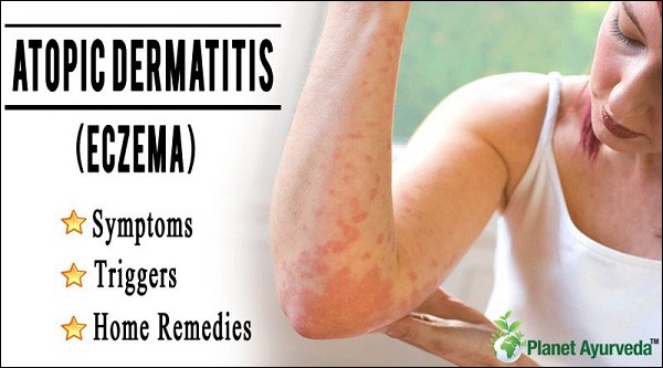 Ayurvedic Treatment of Atopic Dermatitis