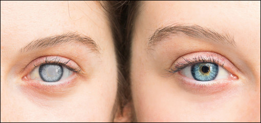 Ayurvedic Treatment for Glaucoma and Cataracts