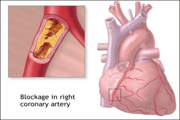 Right Coronary Artery Blockage