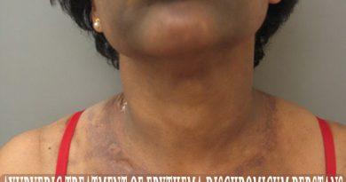Ashy Dermatosis