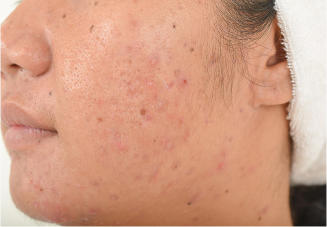 pimples and scars