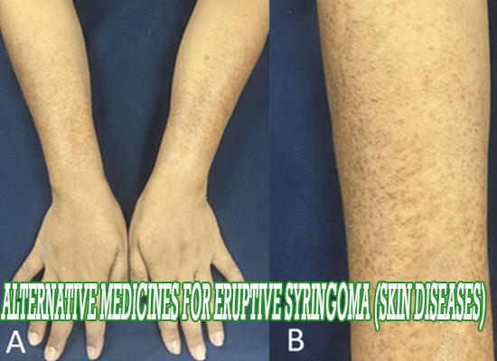 Eruptive syringoma (skin diseases)