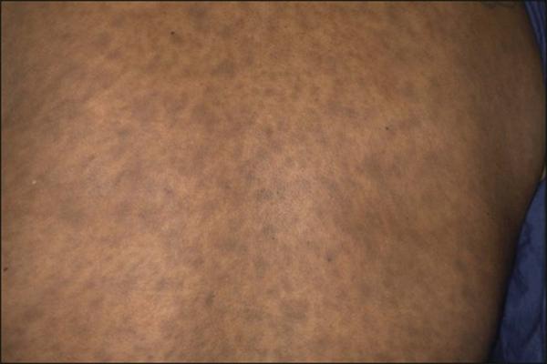 Erythema Dyschromicum Perstans