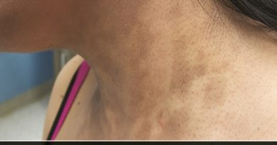 Treatment of Erythema Dyschromicum Perstans in Ayurveda