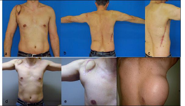 desmoid tumors