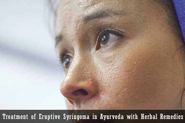 Treatment of Eruptive Syringoma in Ayurveda with Herbal Remedies