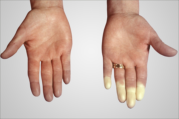 Scleroderma-Polymyositis Overlap Syndrome