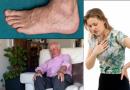 Symptoms of Anasarca